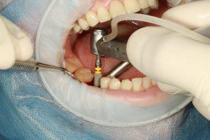 צריכים השתלת שיניים בירושלים? יש למי לפנות